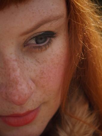 taeden freckles redhead